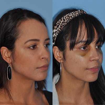Rhinoplasty Gallery - Patient 31710063 - Image 1