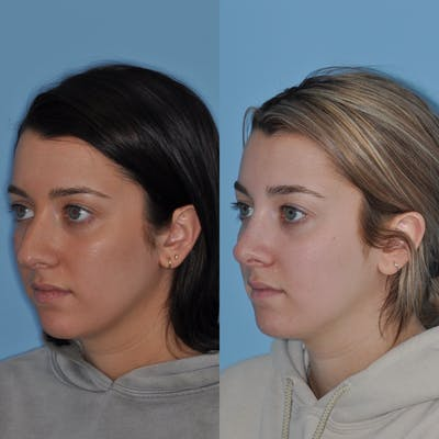 Rhinoplasty Gallery - Patient 31710064 - Image 1