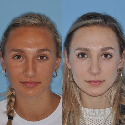 Rhinoplasty Gallery - Patient 31710065 - Image 1