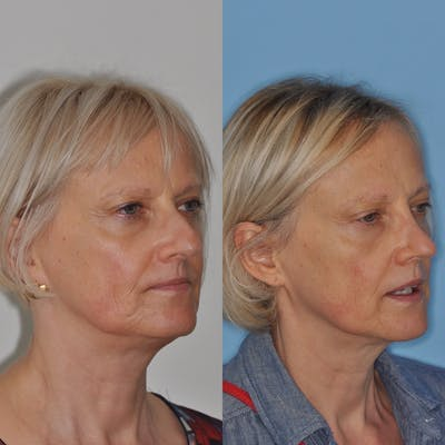 Rhinoplasty Gallery - Patient 31710066 - Image 1