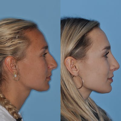 Rhinoplasty Gallery - Patient 31710065 - Image 2