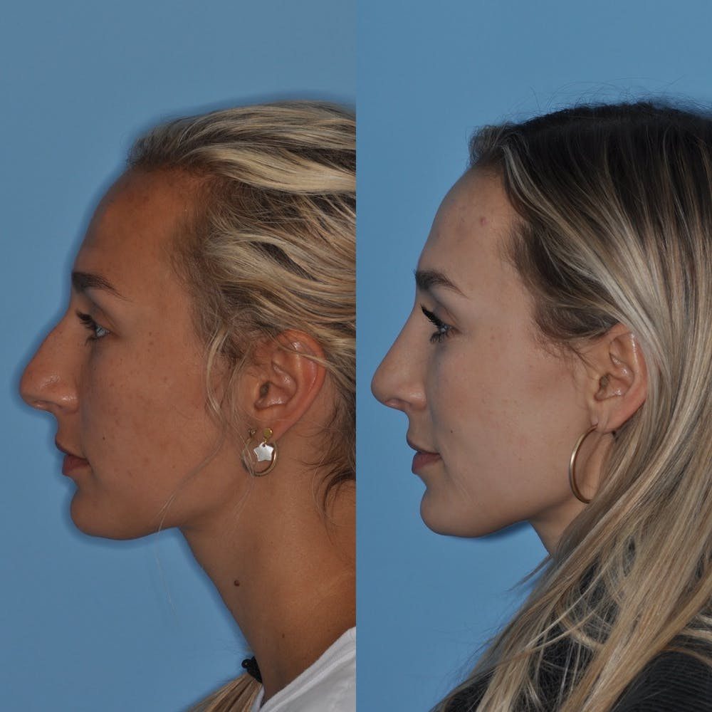 Rhinoplasty Gallery - Patient 31710065 - Image 3