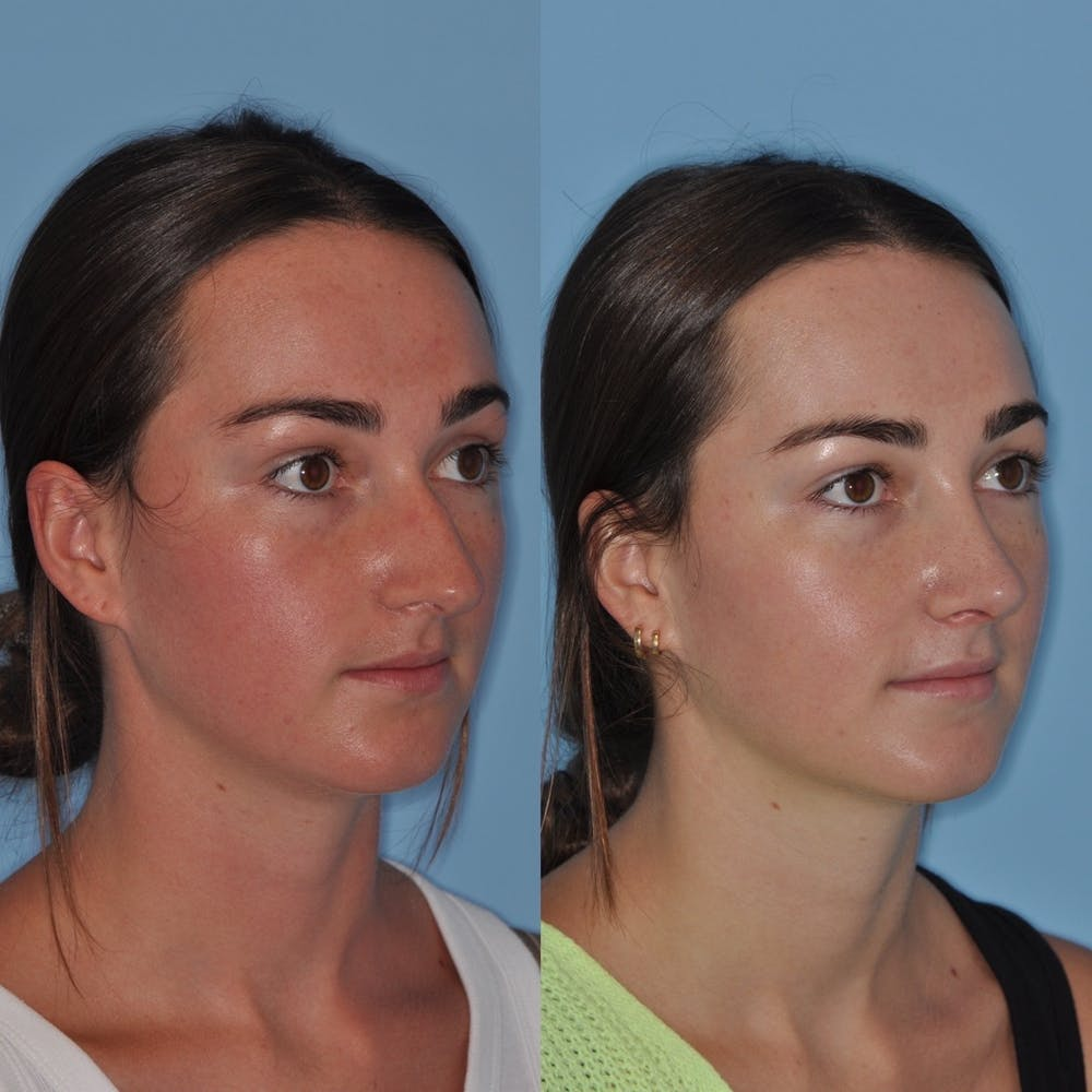 Rhinoplasty Gallery - Patient 31710068 - Image 1