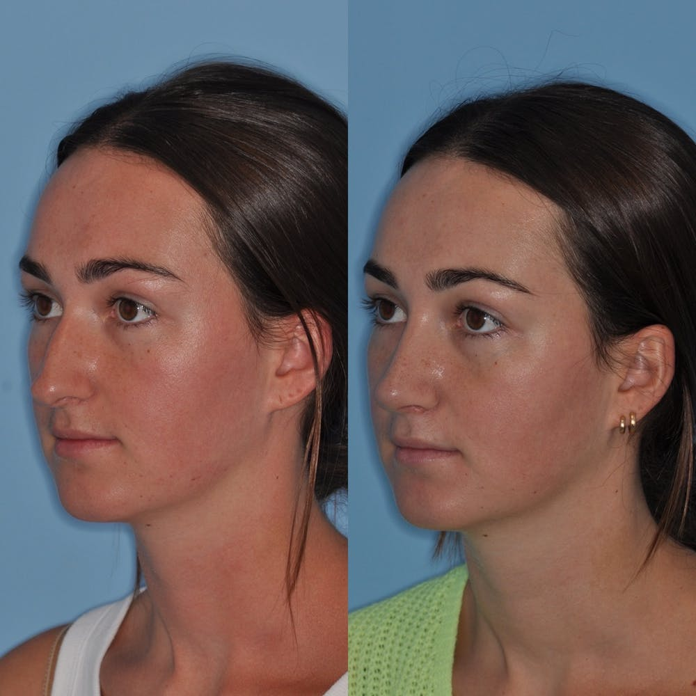 Rhinoplasty Gallery - Patient 31710068 - Image 2