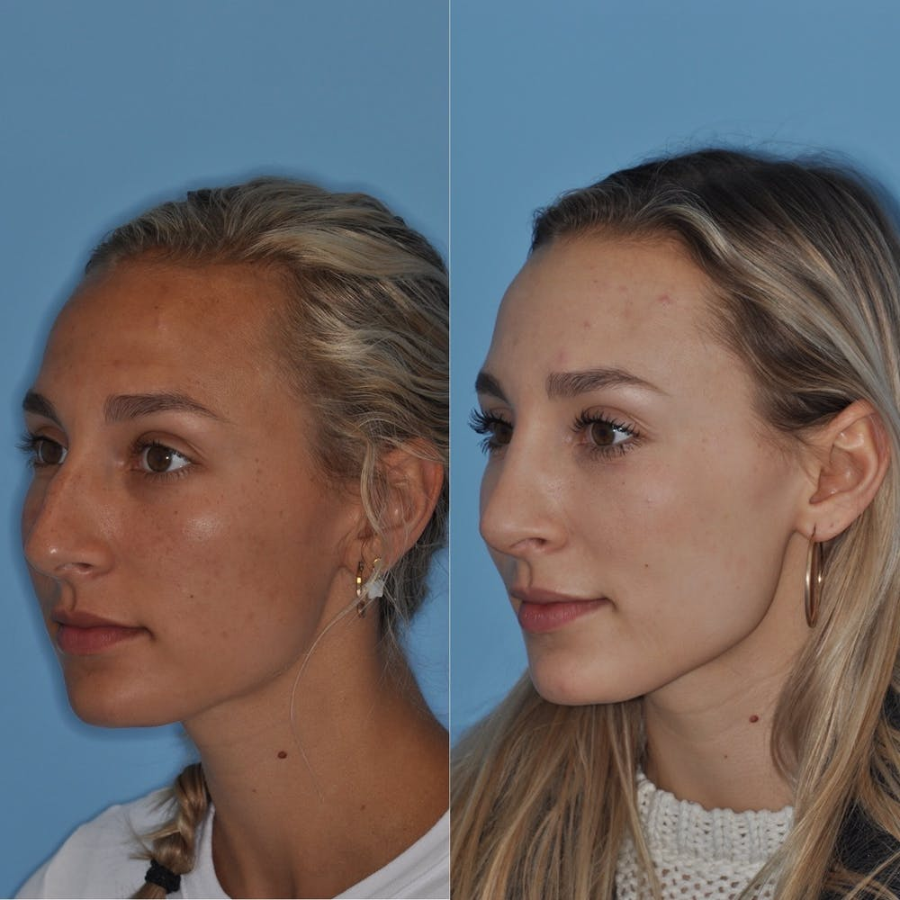 Rhinoplasty Gallery - Patient 31710065 - Image 4