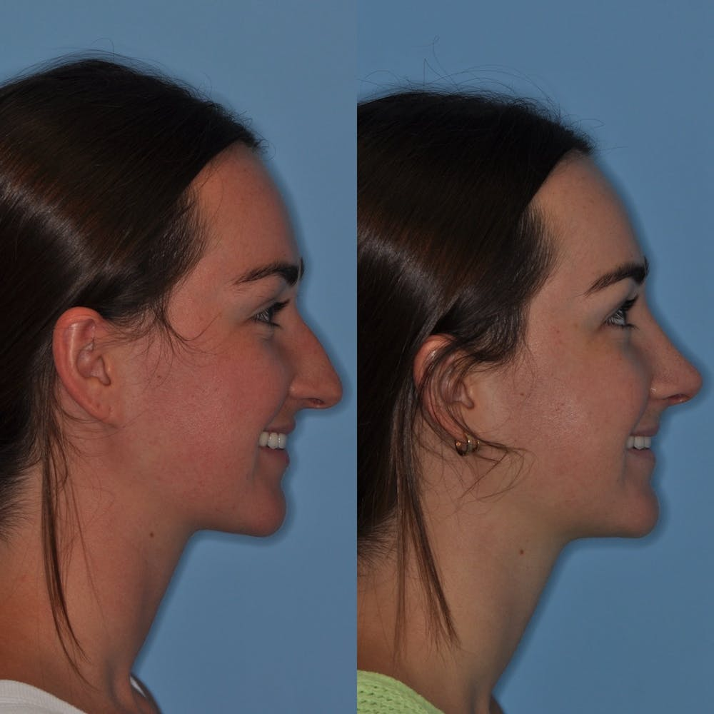 Rhinoplasty Gallery - Patient 31710068 - Image 3