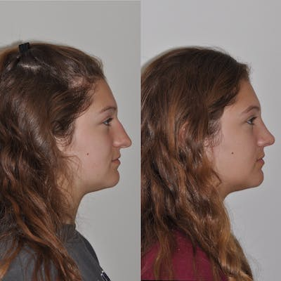Rhinoplasty Gallery - Patient 31710070 - Image 2