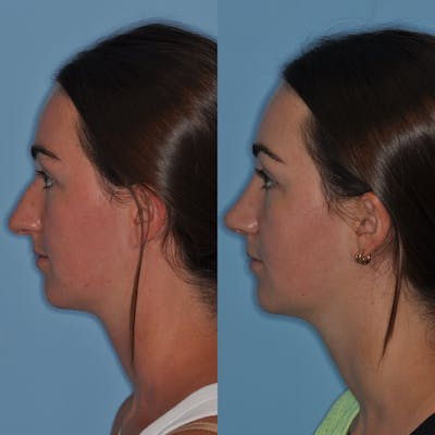 Rhinoplasty Gallery - Patient 31710068 - Image 4