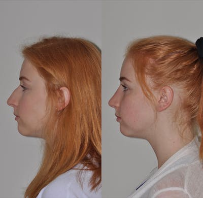 Rhinoplasty Gallery - Patient 31710072 - Image 1