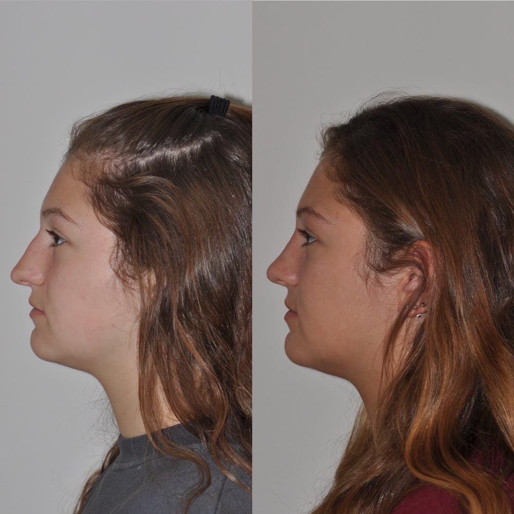 Rhinoplasty Gallery - Patient 31710070 - Image 3