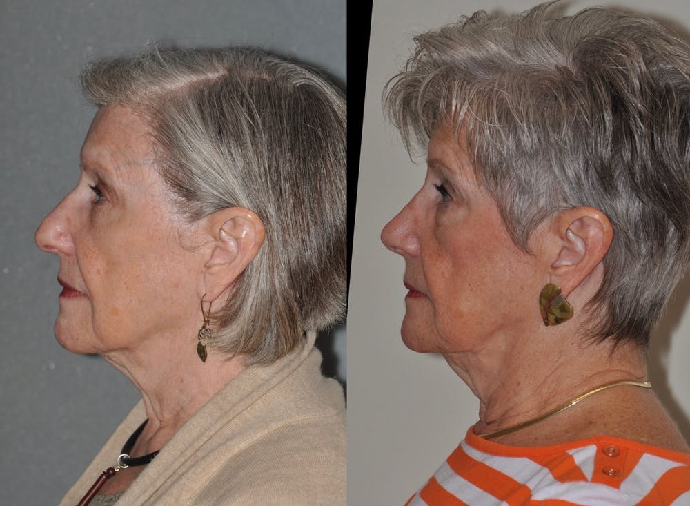 Rhinoplasty Gallery - Patient 31710071 - Image 2