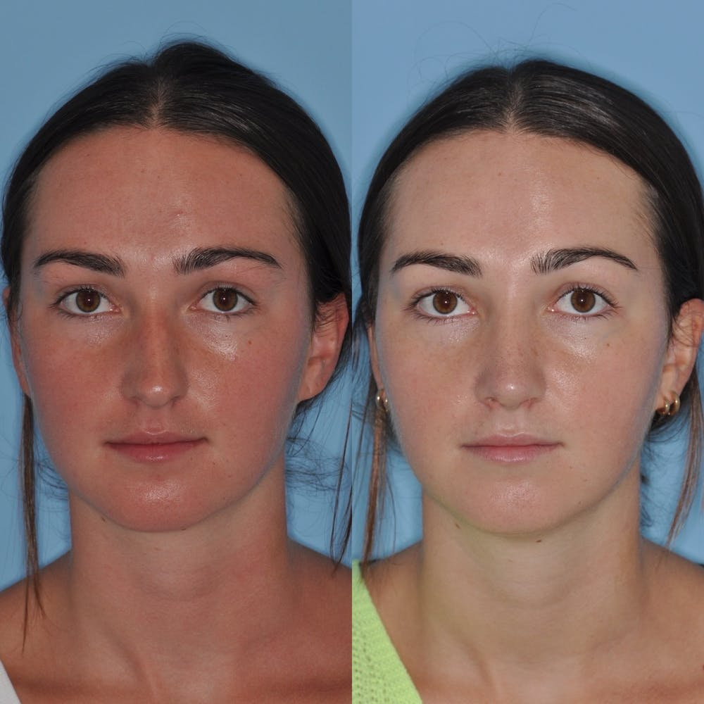 Rhinoplasty Gallery - Patient 31710068 - Image 5