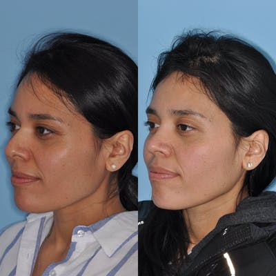 Rhinoplasty Gallery - Patient 31710073 - Image 1
