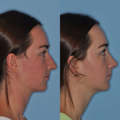Rhinoplasty Gallery - Patient 31710068 - Image 6
