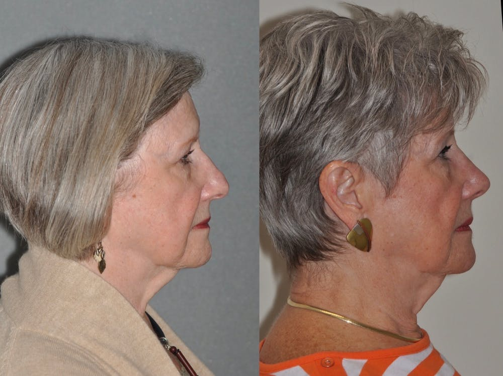 Rhinoplasty Gallery - Patient 31710071 - Image 3