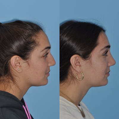 Rhinoplasty Gallery - Patient 31710075 - Image 1