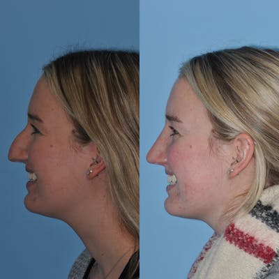 Rhinoplasty Gallery - Patient 31710076 - Image 1