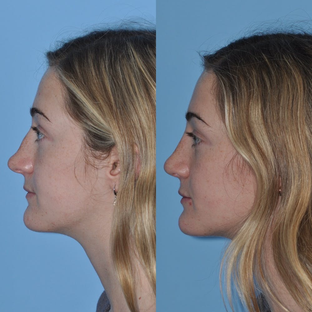 Rhinoplasty Gallery - Patient 31710077 - Image 1
