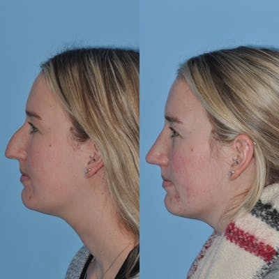 Rhinoplasty Gallery - Patient 31710076 - Image 2