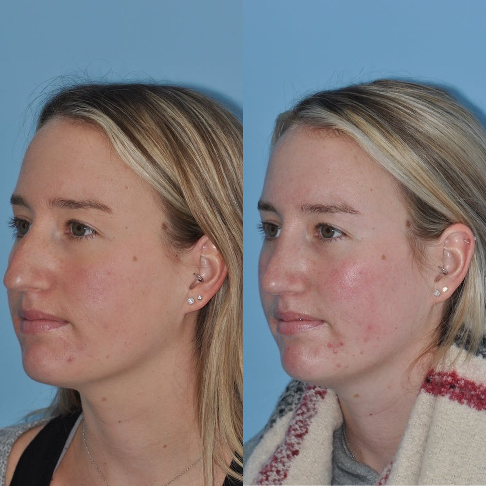 Rhinoplasty Gallery - Patient 31710076 - Image 3