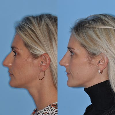 Rhinoplasty Gallery - Patient 31710078 - Image 1
