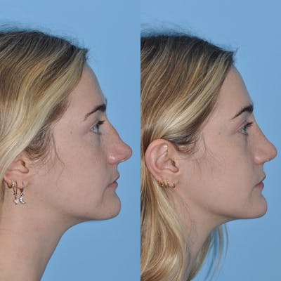 Rhinoplasty Gallery - Patient 31710077 - Image 2