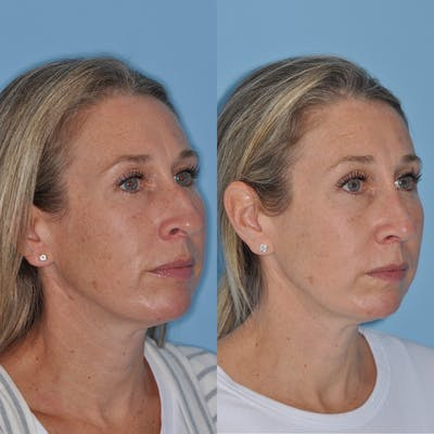 Rhinoplasty Gallery - Patient 31710079 - Image 1
