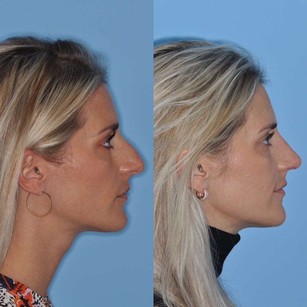 Rhinoplasty Gallery - Patient 31710078 - Image 2