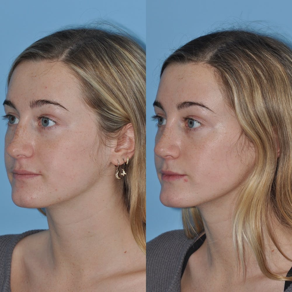 Rhinoplasty Gallery - Patient 31710077 - Image 3