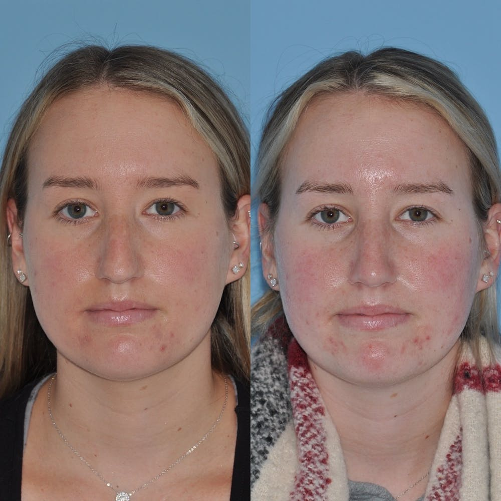 Rhinoplasty Gallery - Patient 31710076 - Image 4