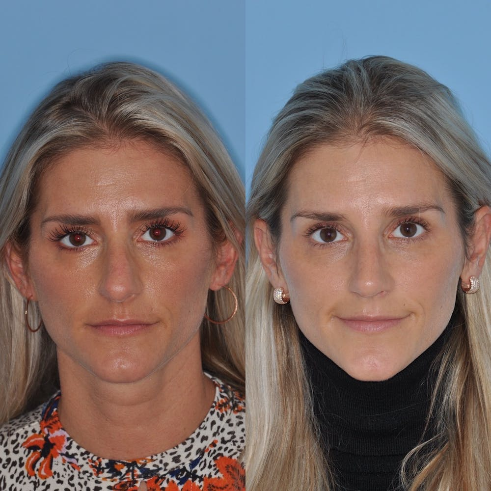Rhinoplasty Gallery - Patient 31710078 - Image 3