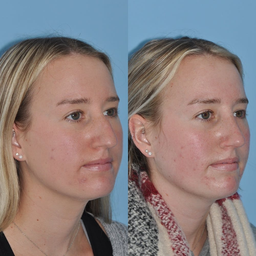 Rhinoplasty Gallery - Patient 31710076 - Image 5
