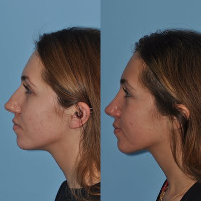 Rhinoplasty Gallery - Patient 31710081 - Image 1
