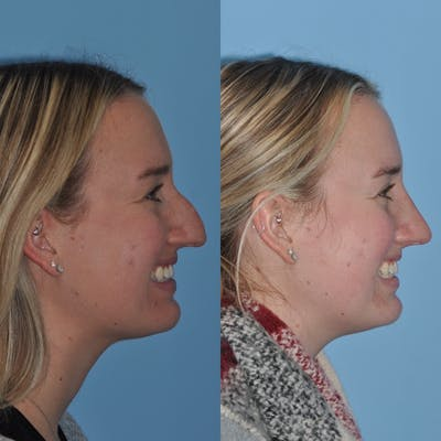 Rhinoplasty Gallery - Patient 31710076 - Image 6