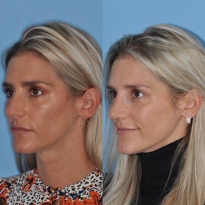 Rhinoplasty Gallery - Patient 31710078 - Image 4