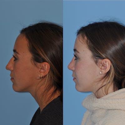 Rhinoplasty Gallery - Patient 31710082 - Image 1