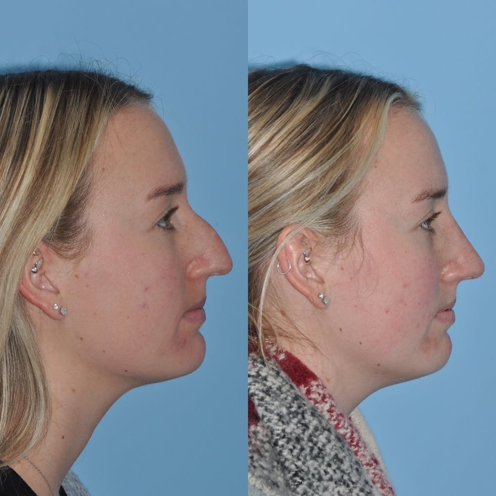Rhinoplasty Gallery - Patient 31710076 - Image 7