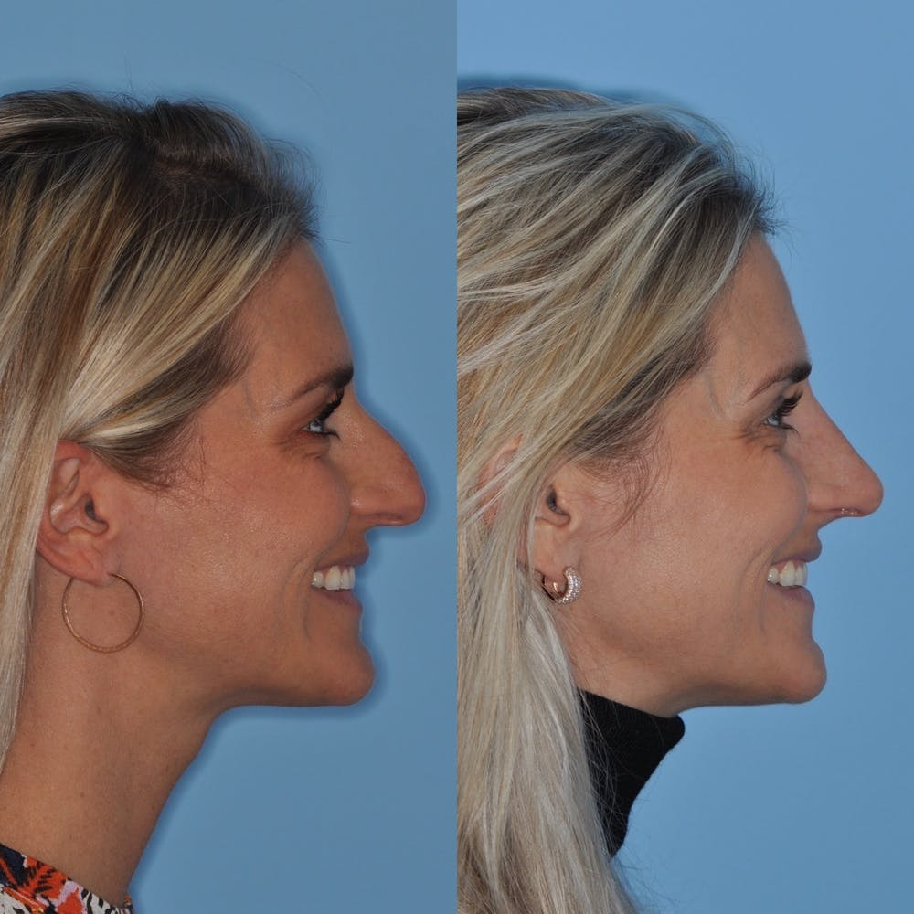 Rhinoplasty Gallery - Patient 31710078 - Image 6