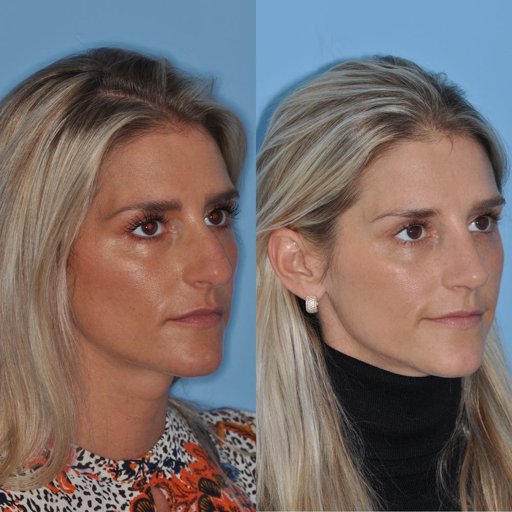 Rhinoplasty Gallery - Patient 31710078 - Image 7