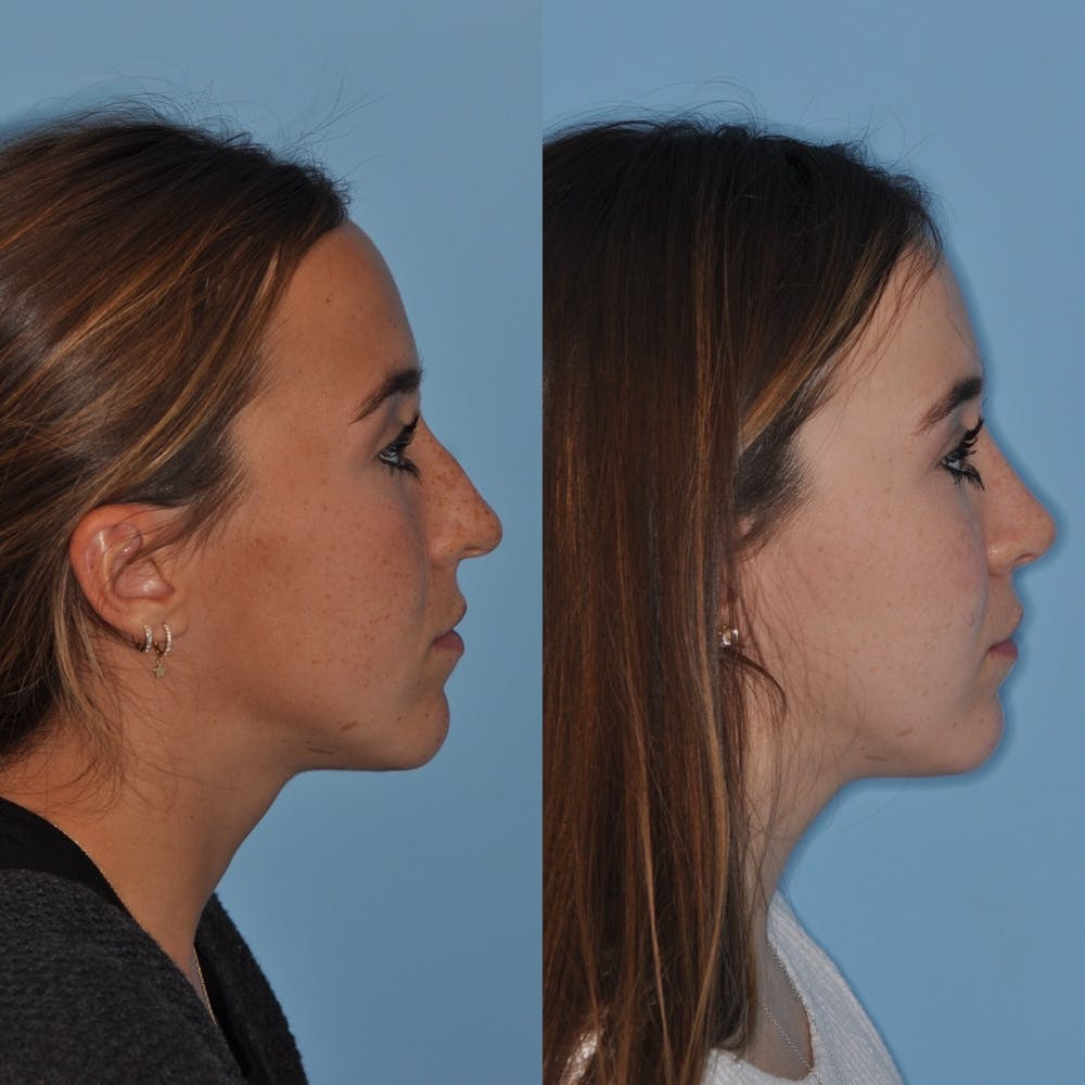 Rhinoplasty Gallery - Patient 31710082 - Image 4