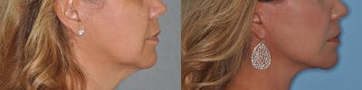 Facelift Gallery - Patient 31709460 - Image 2