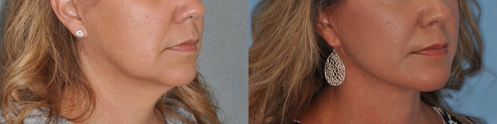 Facelift Gallery - Patient 31709460 - Image 3