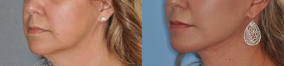 Facelift Gallery - Patient 31709460 - Image 4