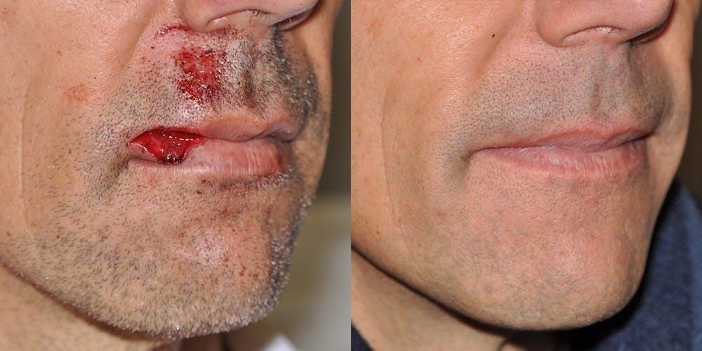 Facial Reconstruction Gallery - Patient 31709204 - Image 1