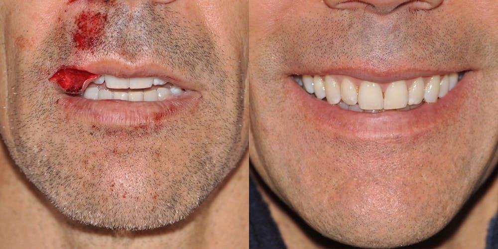 Facial Reconstruction Gallery - Patient 31709204 - Image 2
