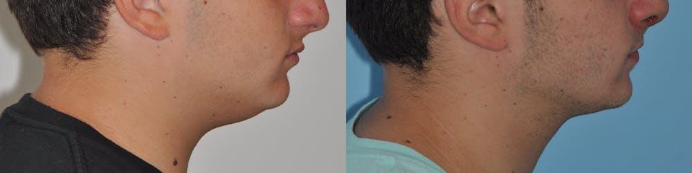Neck Liposuction Gallery - Patient 31709173 - Image 1