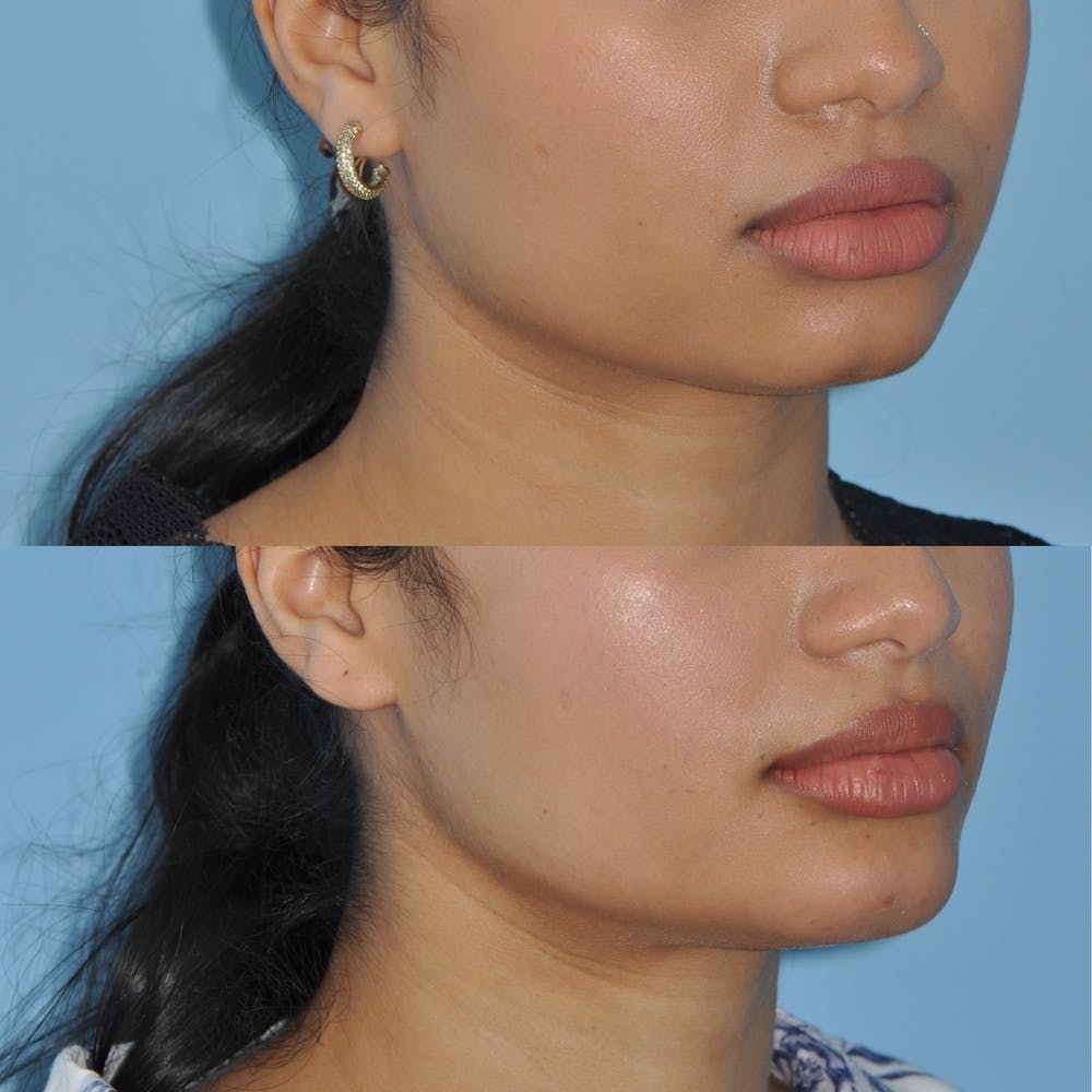 Chin Implants Gallery - Patient 58470335 - Image 1