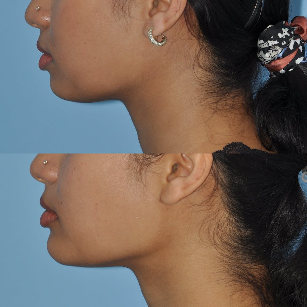 Chin Implants Gallery - Patient 58470335 - Image 2