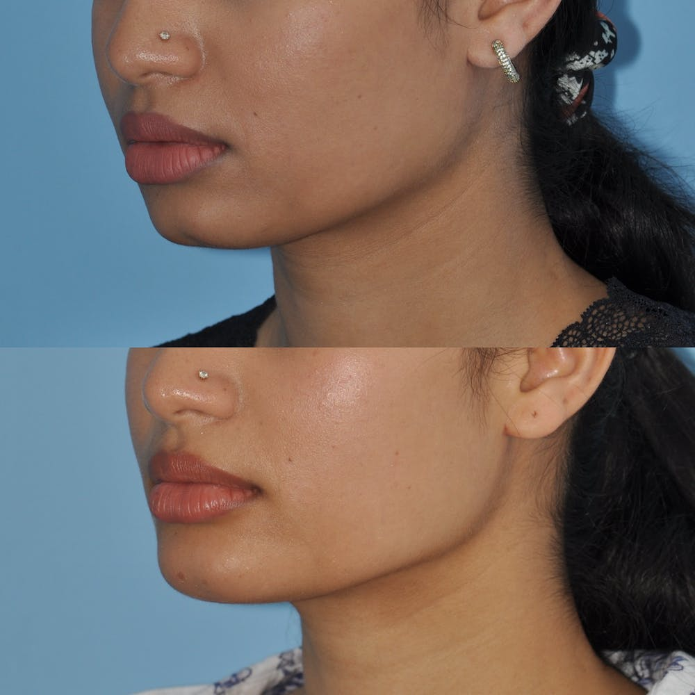 Chin Implants Gallery - Patient 58470335 - Image 3