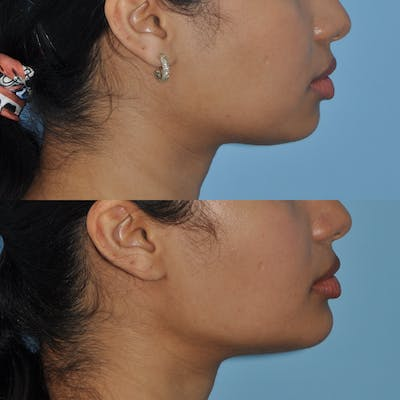 Chin Implants Gallery - Patient 58470335 - Image 4